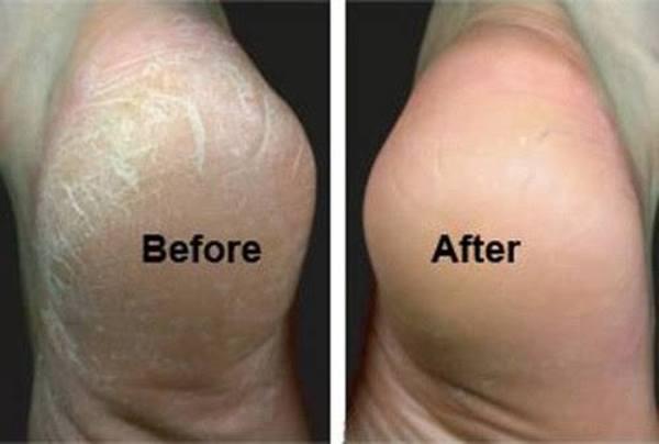 Home Heel Crack Remedy