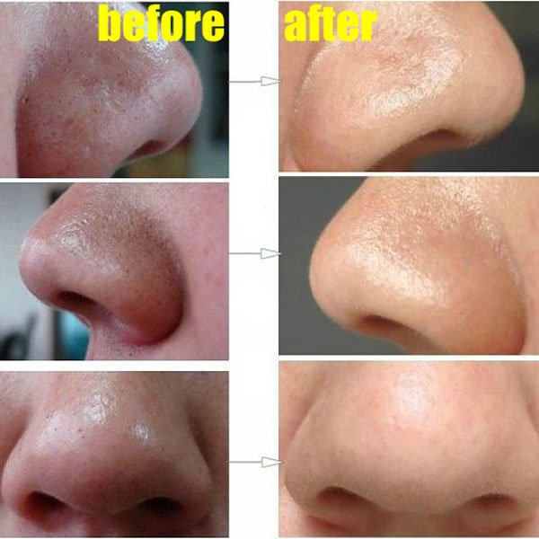 How-to-Easily-Remove-Deep-Blackheads