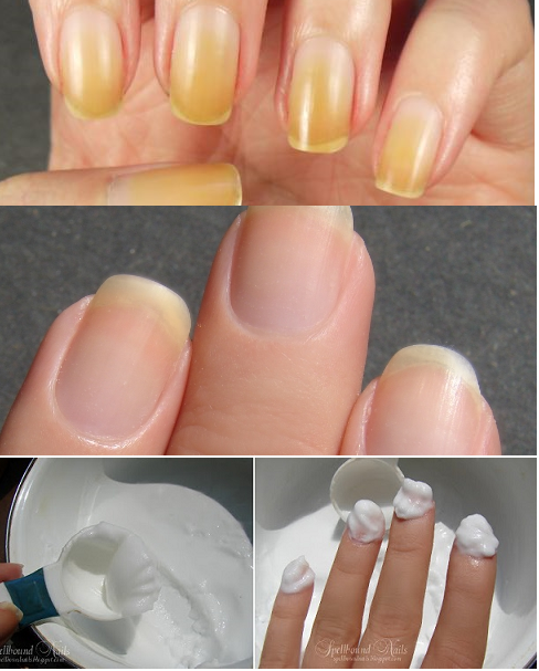 Simple Method to Whiten Your Nails