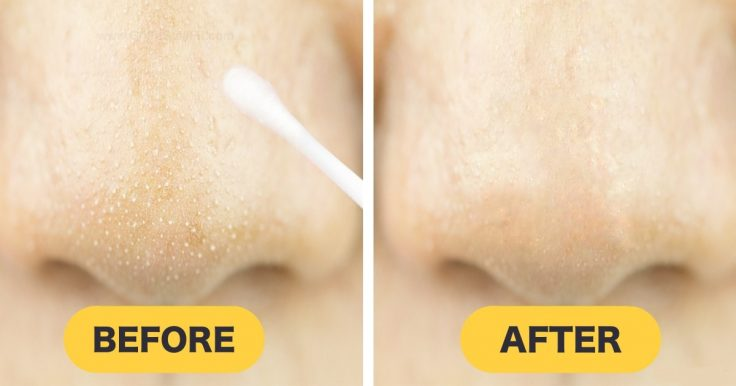 The Easiest Way To Remove Deep Blackheads At Home