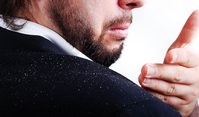 How-to-Prevent-Dandruff