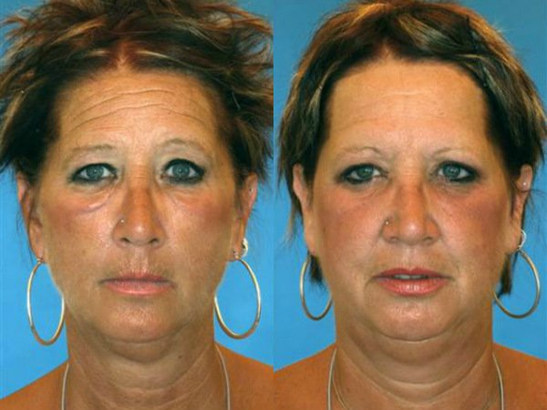 Smoking cigarettes effects on twins 10