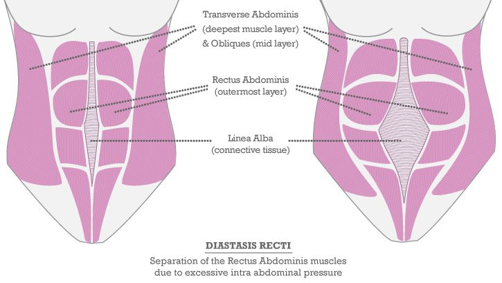 Diastasis Recti And Abs After Pregnancy