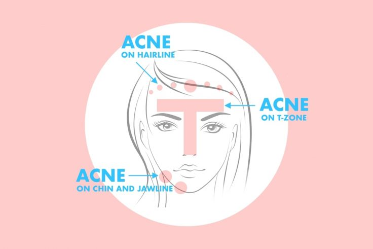 Stop Doing These 10 Things If You Have Acne