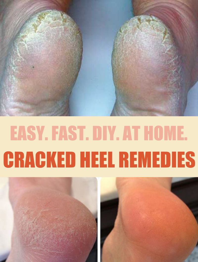 Cracks on the heels: causes and treatment of cracks on the heels at home 3