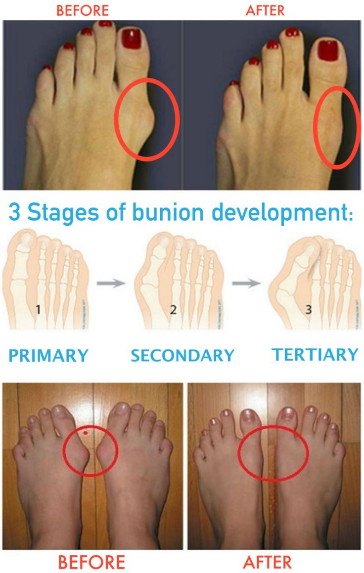 How to treat bunions