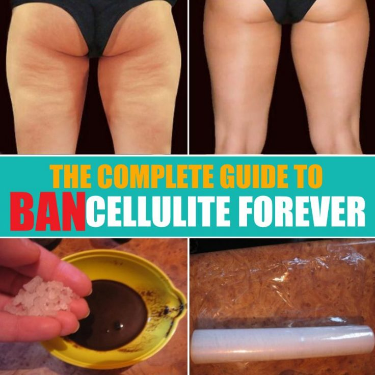 Guide To Ban Cellulite