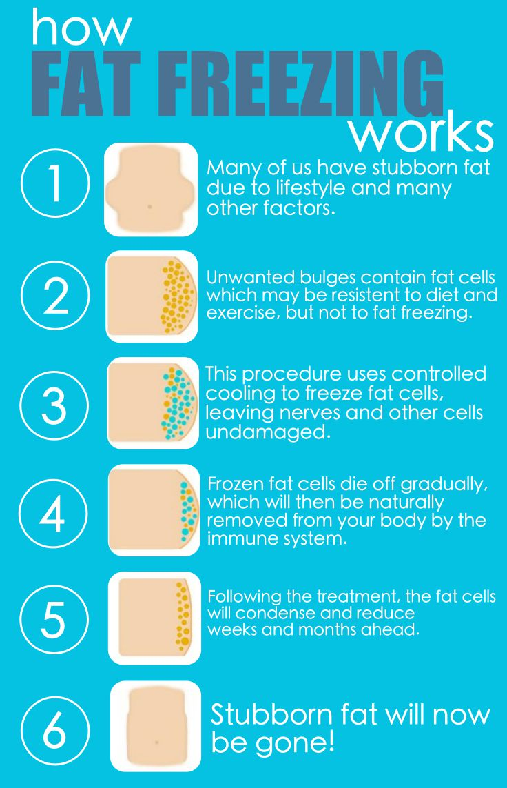 How Fat Freezing Works