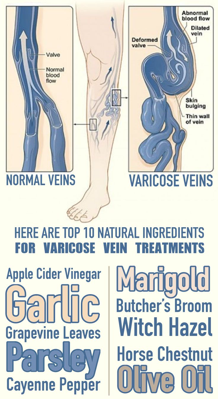 Ingredients For Varicose Vein Treatments