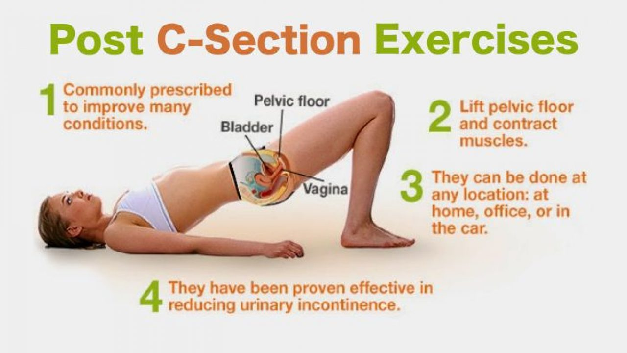 Post C-Section Workout To Tighten Your Tummy - Fitneass