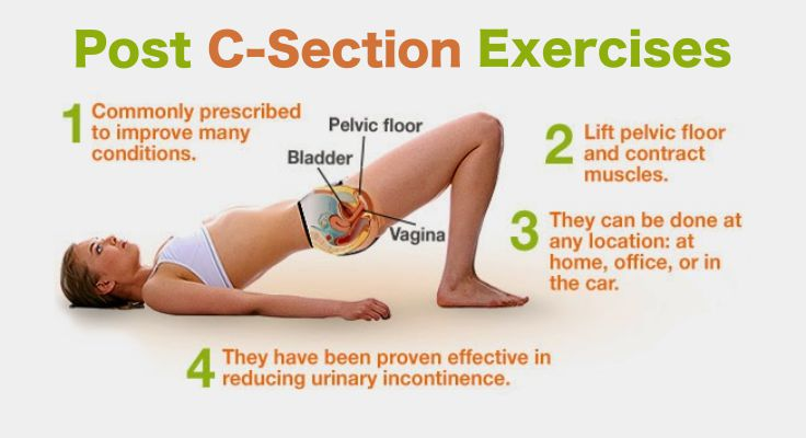 lose weight after c section