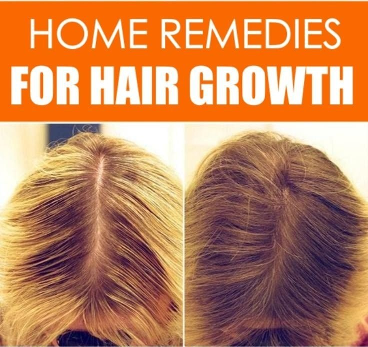 6 Home Remedies For Hair Growth