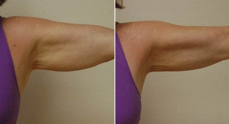How To Lose Arm Fat - Wraps