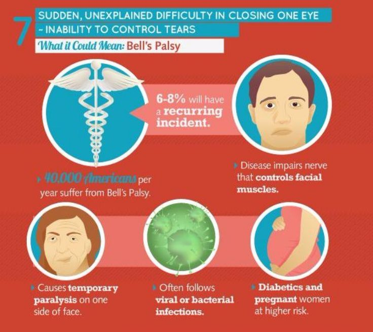 Eyes and Bell's Palsy
