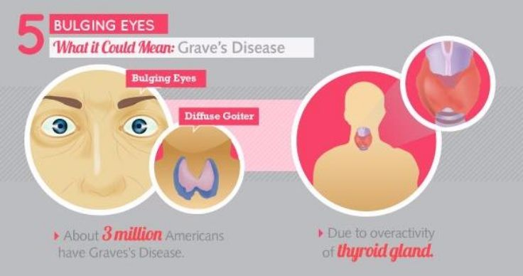Eyes and Grave's Disease