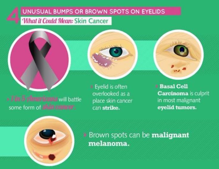 Eyes and Skin Cancer