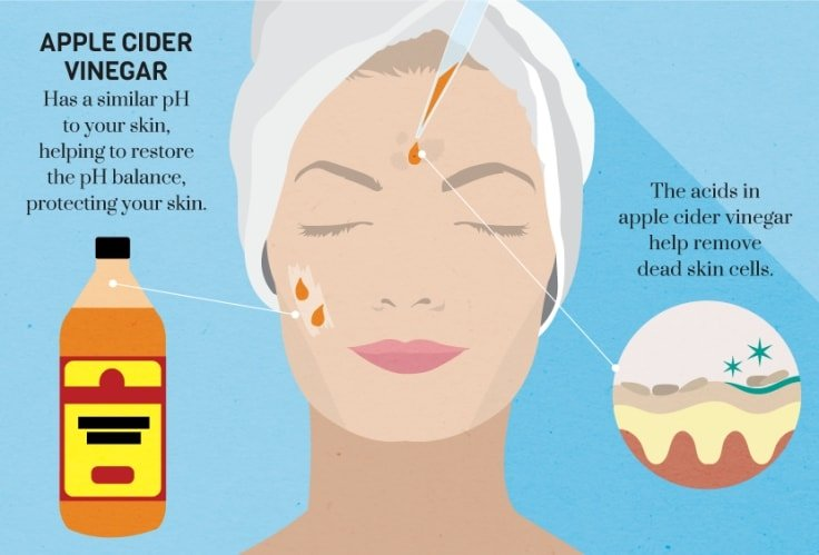 Apple Cider Vinegar For Oily Skin