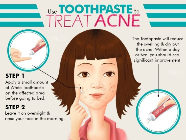 Treat Acne With Toothpaste