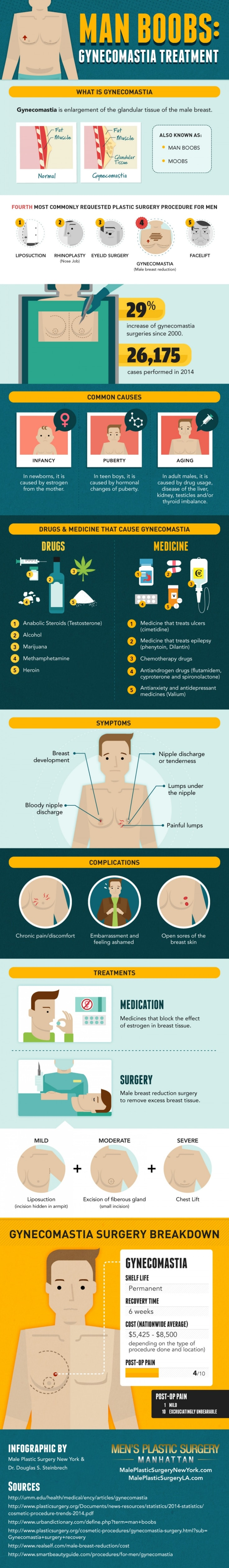 Man Boobs - Gynecomastia Infographic