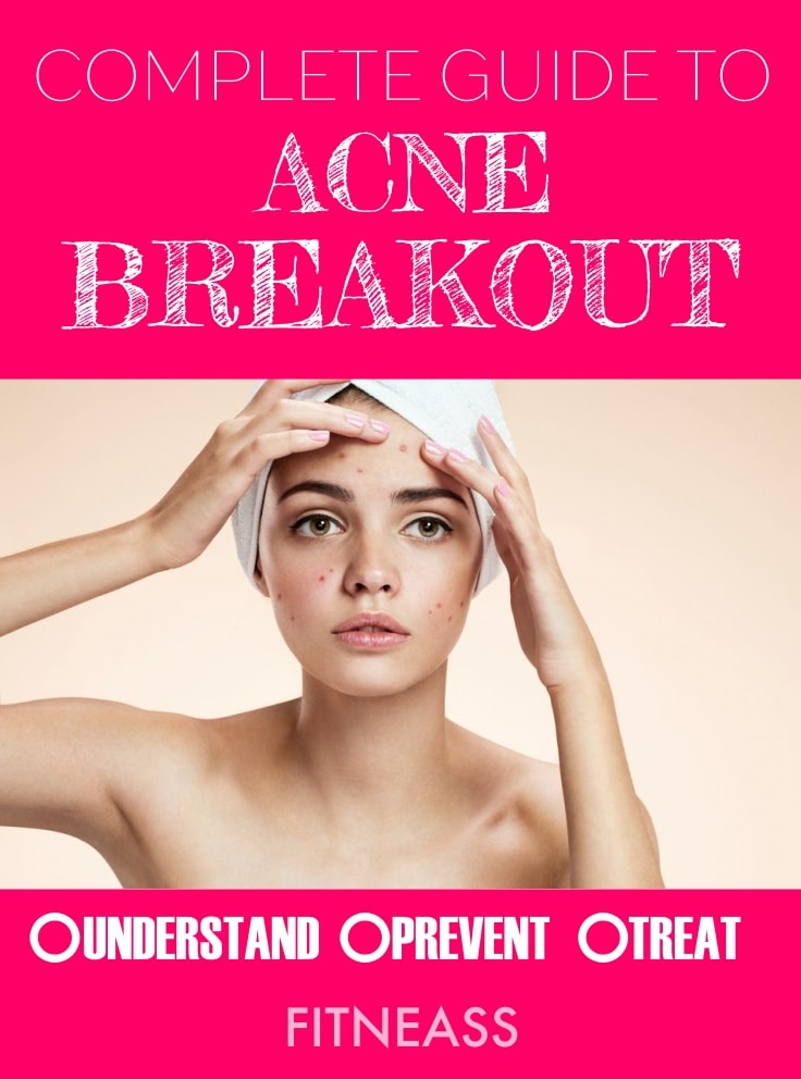Complete Guide To Acne Breakout