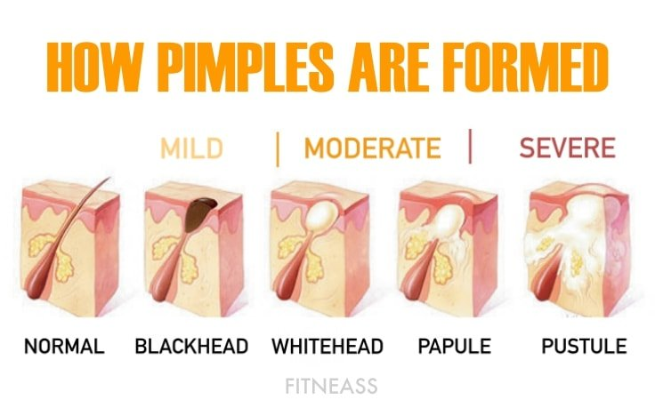 How Acne And Pimples Are Formed