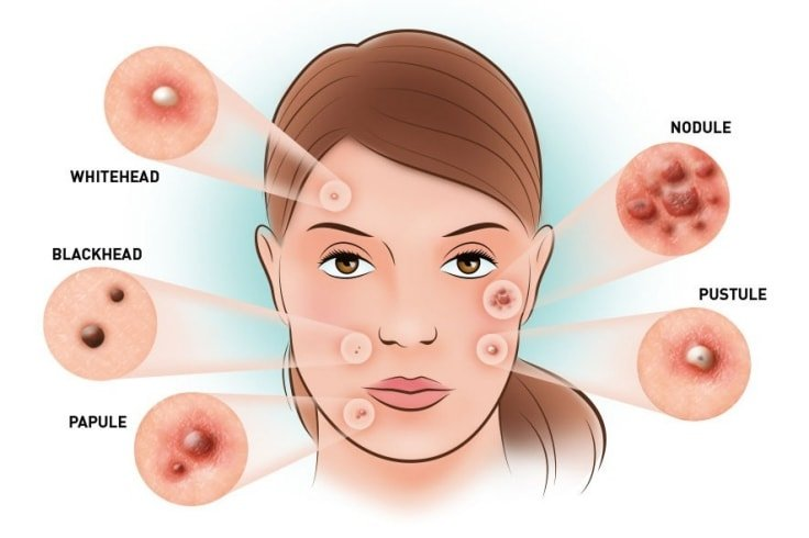 Types of Acne Breakout