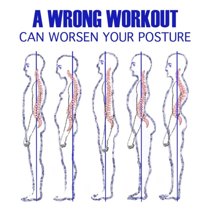 From right to bad posture (vertebral column)