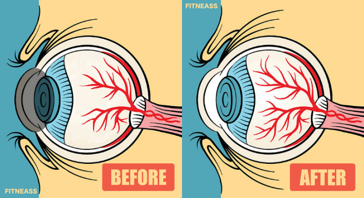 Eye Exercises To Help Improve Your Vision