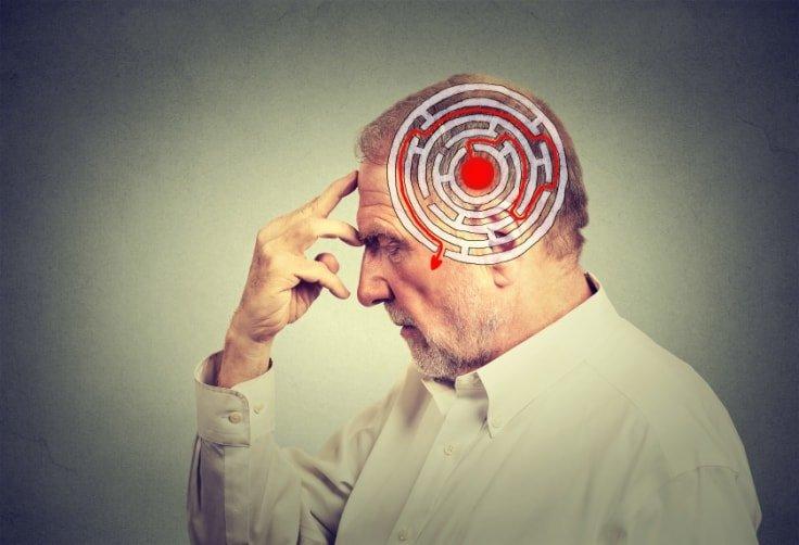 Modafinil Benefits - Enhances Cognitive Functions