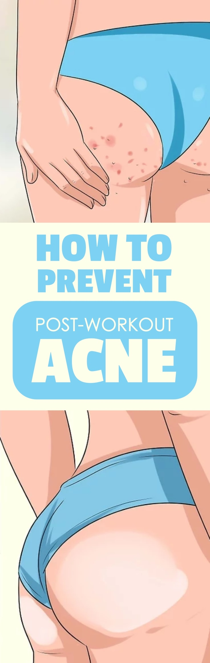 Preventing Your Post-Workout Acne Breakouts
