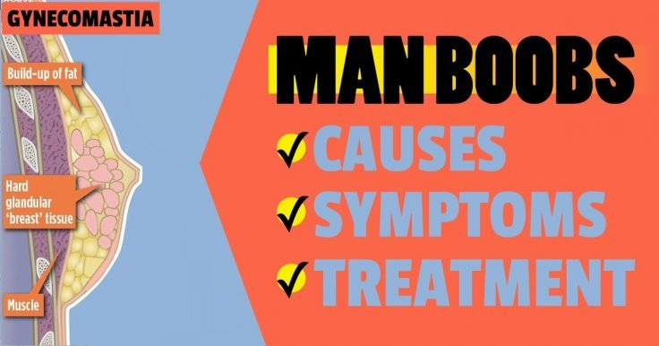 Gynecomastia (Man Boobs or Moobs) Causes, Symptoms And Treatment