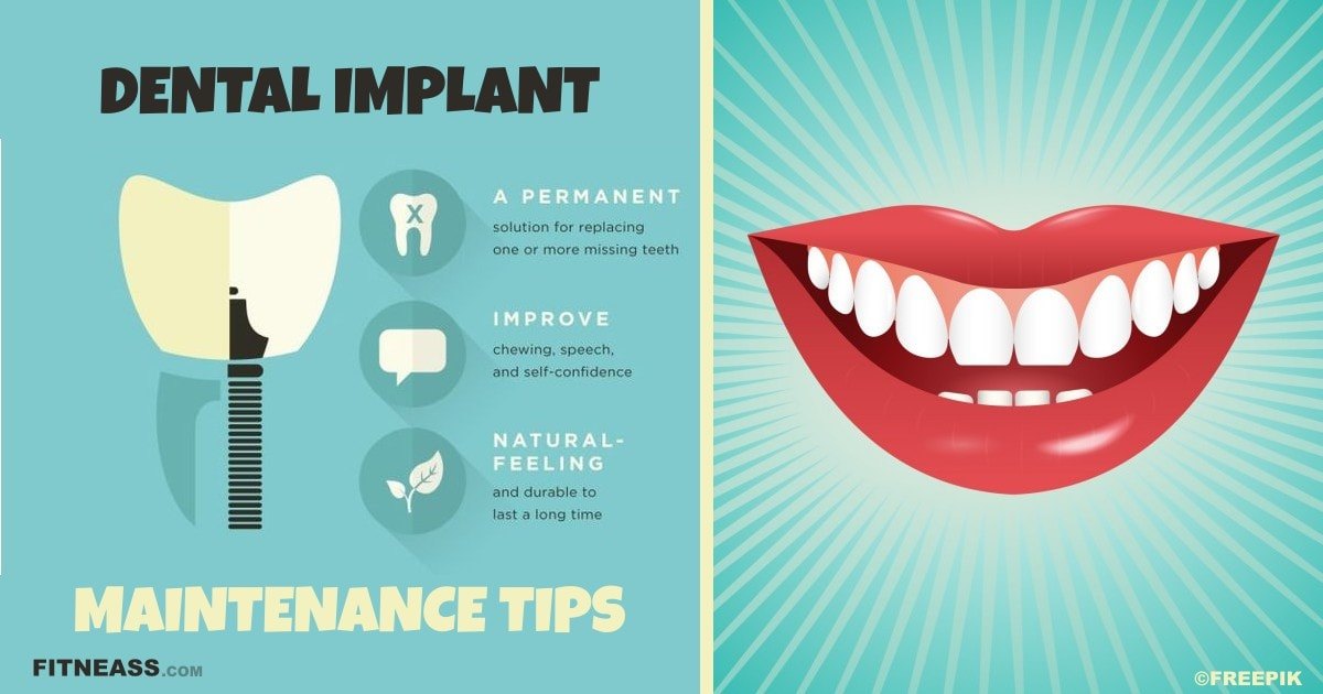 4 Key Ways You Can Keep Your Dental Implants In Top Shape