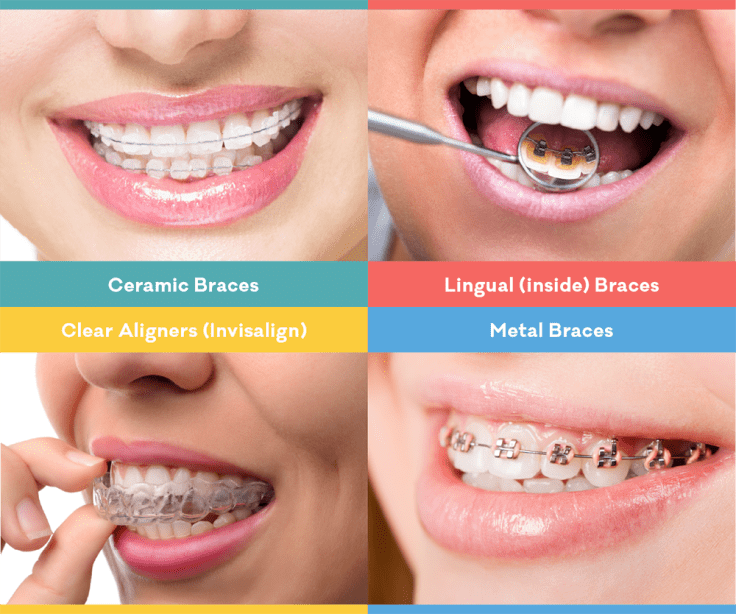 4 Types Of Teeth Braces