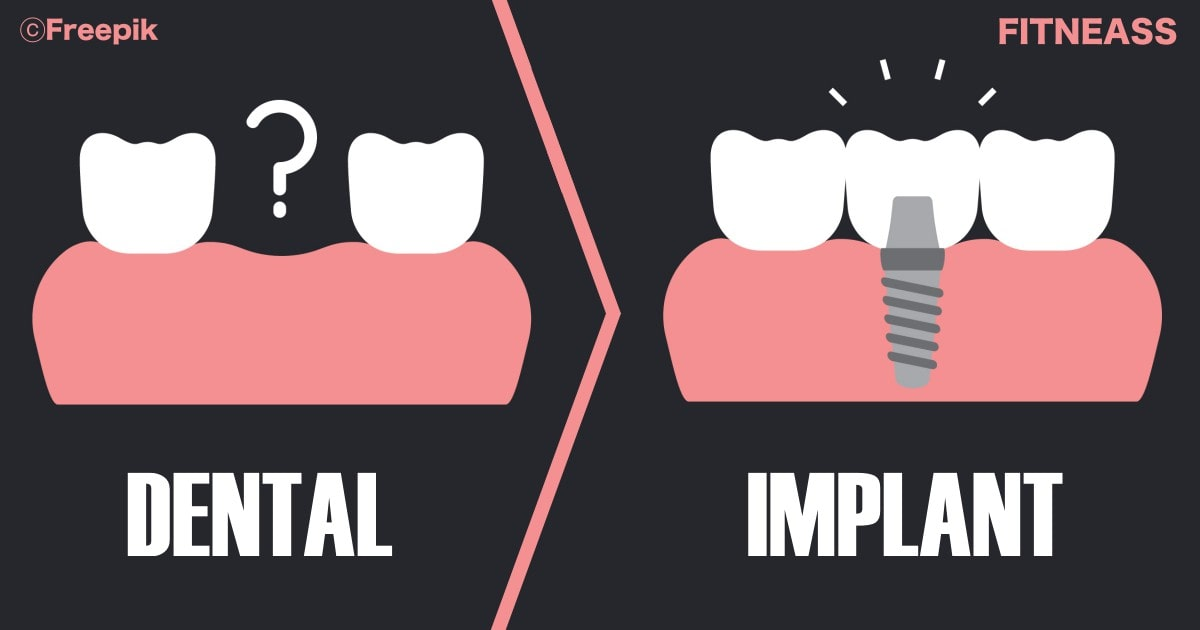 A Comprehensive And Helpful Dental Implants Guide