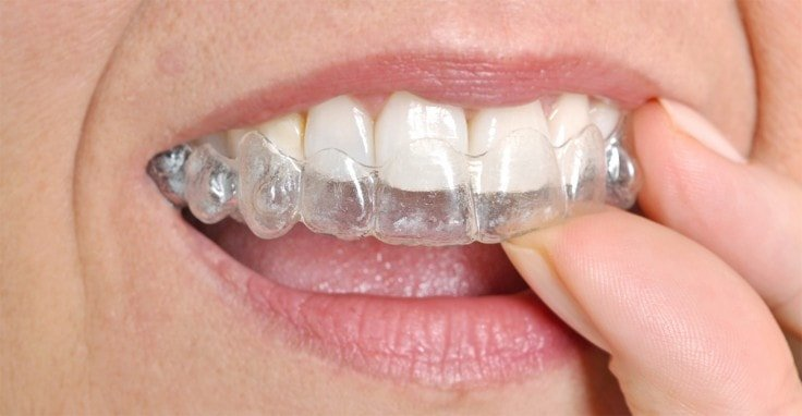 Dental Tips - Use Night Guards
