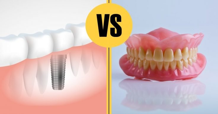 Reasons To Choose Implants Over Dentures