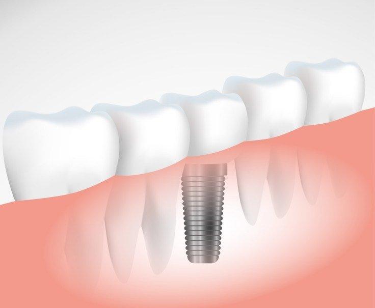 Why Choose Implants Over Dentures - Last Longer
