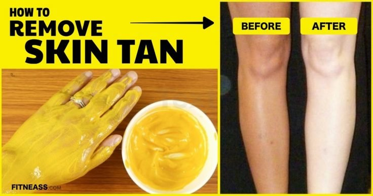 8 Natural Home Remedies To Remove Sun Tan From Your Skin
