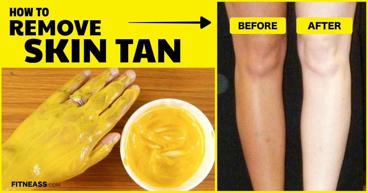 How To Remove Tan From Hands Naturally At Home