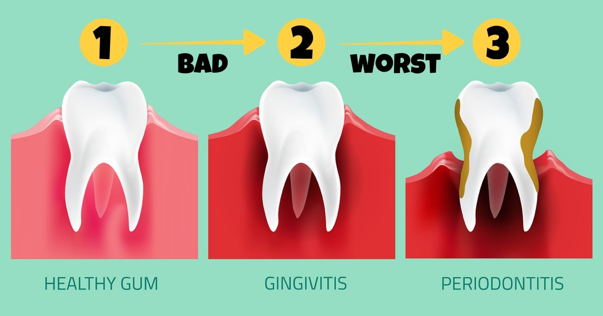 From Healthy Gum To Gum Disease And Periodontitis