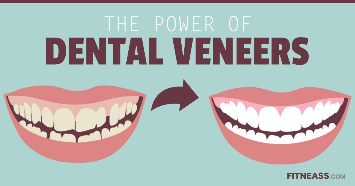 The Power Of Dental Veneers