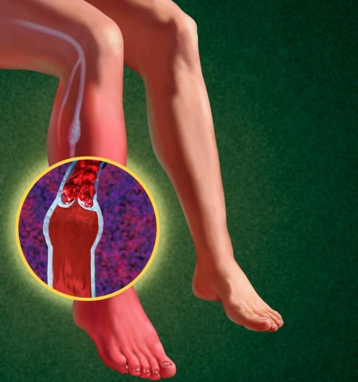 Deep Vein Thrombosis May Appear If You Cross Your Legs When Sitting