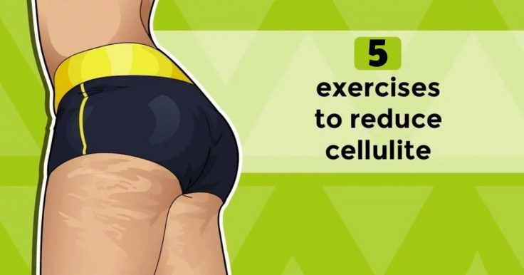 5 Best Exercises To Get Rid Of Cellulite On Thighs, Legs, And Bum