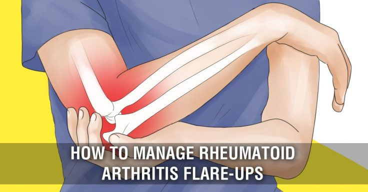 How To Manage Arthritis Flare Ups