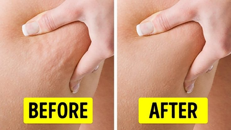 Top 5 Exercises To Get Rid Of Cellulite At Home