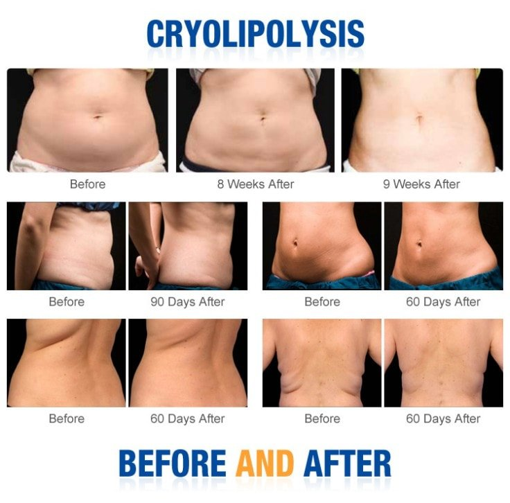Cryolipolysis To Spot Reduce Fat