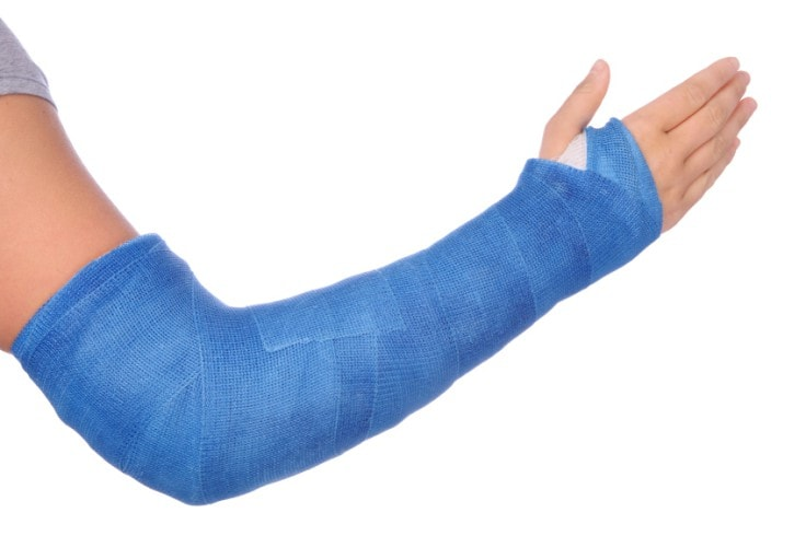Common Sports Injuries - Orthopedic Fractures And Breaks