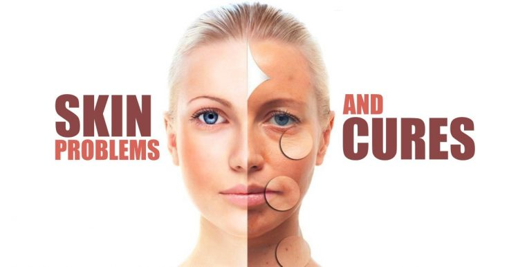 Skin Problems And How To Solve Them