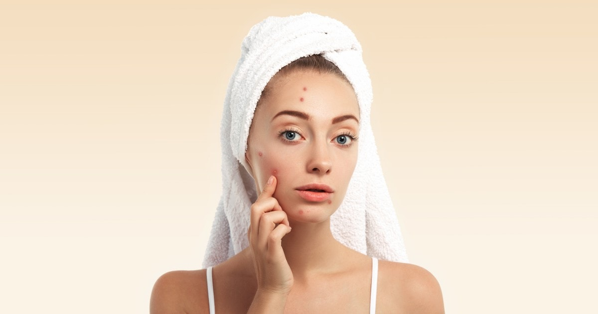 5 Healthy Ways To Prevent And Eventually Treat Adult Acne