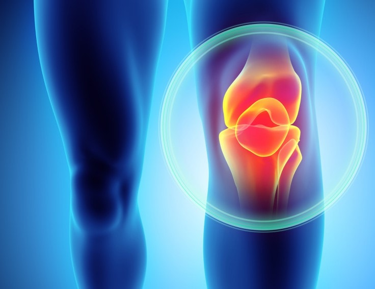 How To Avoid Joint Pain - Knee